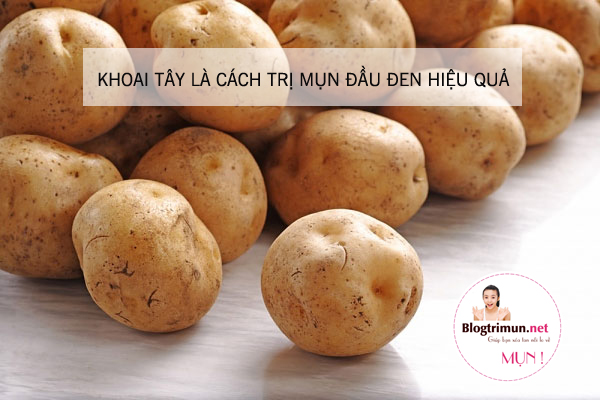 Cách trị mụn đầu đen hiệu quả bằng khoai tây
