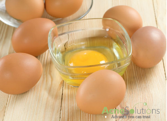 Cách trị mụn cấp tốc từ lòng trắng trứng gà