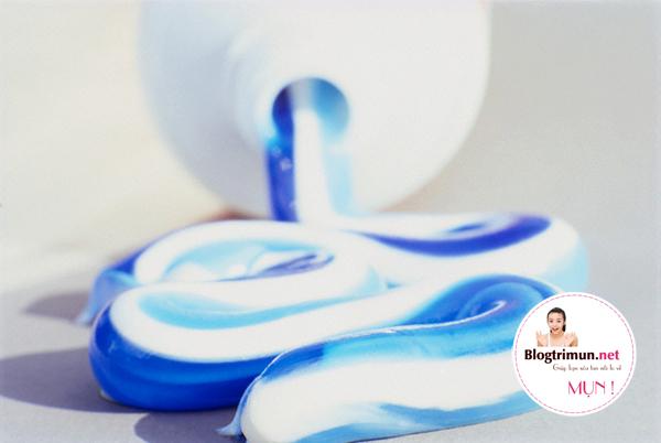 Trị mụn đầu đen hiệu quả bằng kem đánh răng