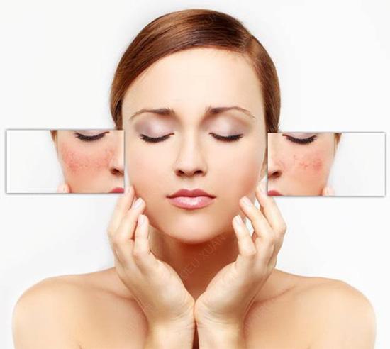 Trị nám da không đúng cách sẽ hủy hoại làn da của bạn như thế nào?